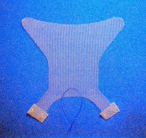 Minimally Invasive Transvaginal mesh for Pelvic Organ Prolapse repair